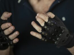 After Acclaimed Pianist was forced to stop Playing due to Disease, a Designer Made Gloves That Brought Back His Hands